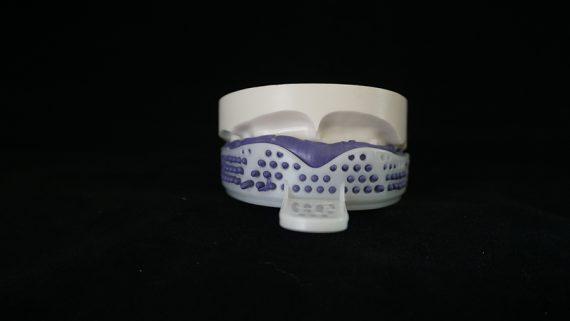 upper teeth impression