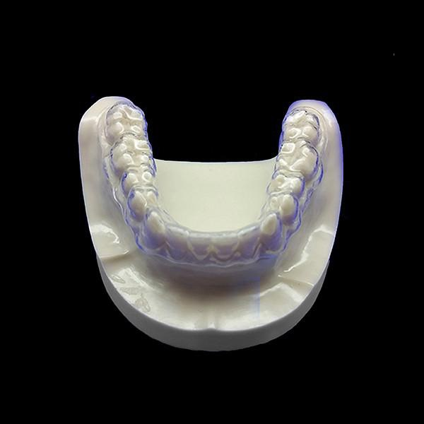 clear-teeth-aligner